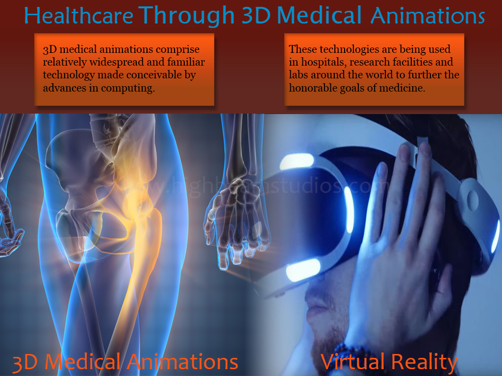 Professional 3D Medical Animations