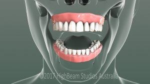 3D Still Image Dental Front View