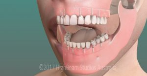 3D Graphic Image Dental